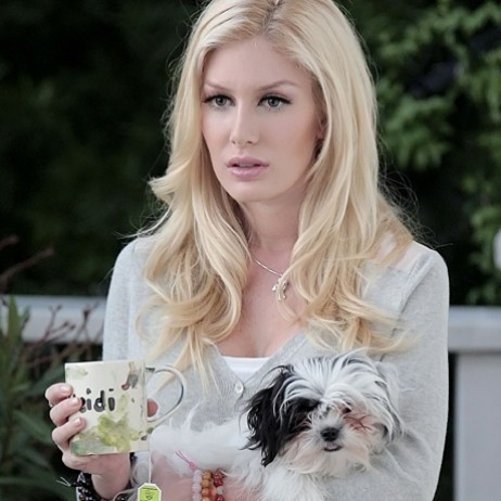 heidi montag after surgery. And after.